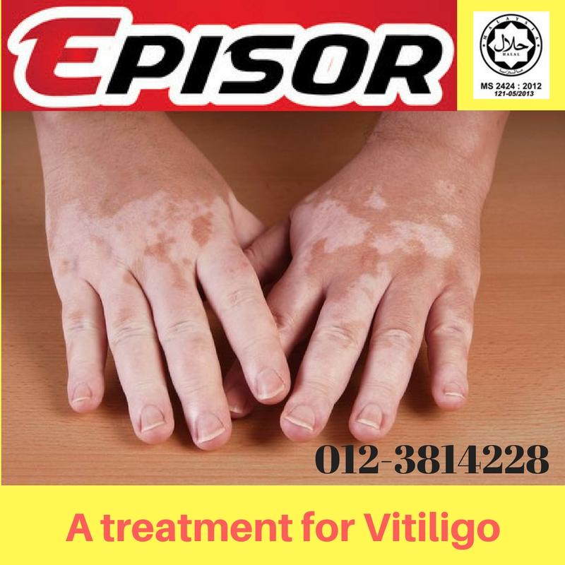 treatment for vitiligo in subang jaya