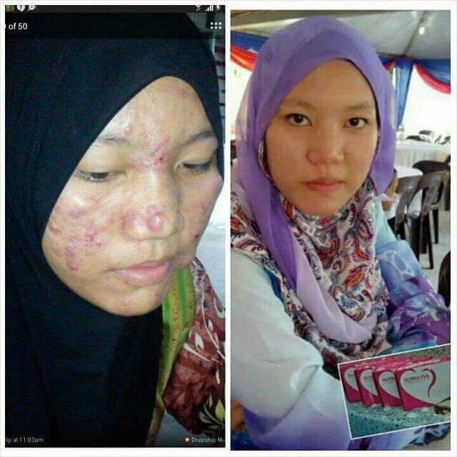 rawat eczema cara selamat   Selangor   0196025642